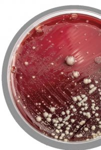Bacterial Stool Culture Plate