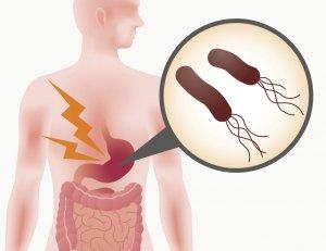 Helicobacter pylori - Human Stomach